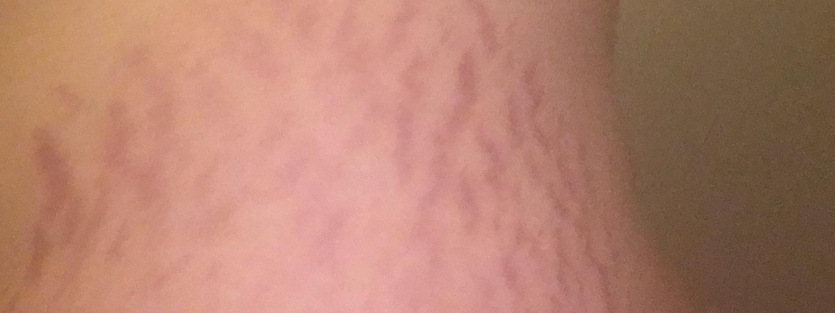ترک های پوست در دوره بارداری