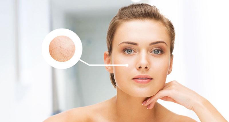 تشخیص نوع پوست