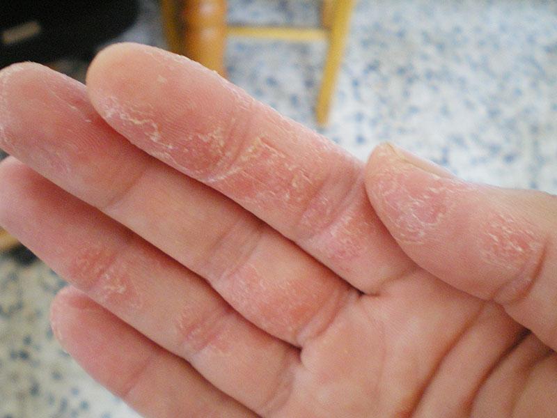 حساسیت به مواد ضدعفونی کننده محیط بیمارستانی   محلول های ضدعفونی کننده اتاق عمل   انواع مواد گندزدا در بیمارستان